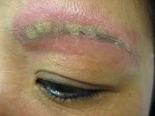 When cosmetic tattooing goes wrong emma hall beauty for Tattooed eyebrows gone wrong